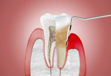 Photo of Periodontal Disease & Heart Disease: Is There a Connection?