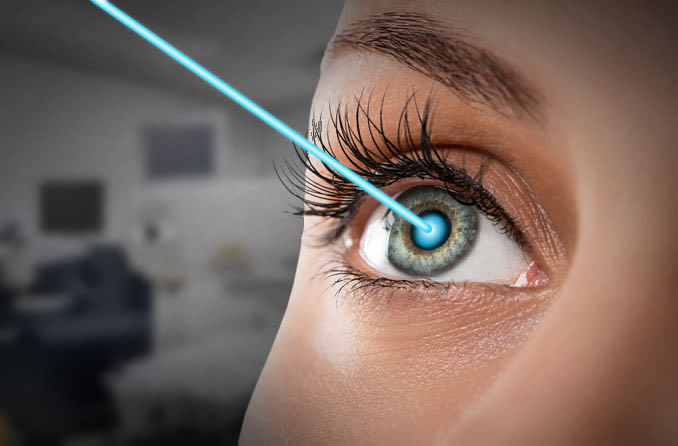 What can you expect from LASIK eye surgery?